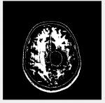 تشخیص تومور مغزی با تکنیک پردازش تصویر در متلب همراه گزارش و مقاله-1