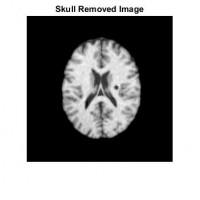 تشخیص سکته مغزی از روی تصاویر ct-scan مغز با روش SVM همراه دیتابیس