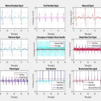 پروژه متلب جداسازی سیگنال ضربان قلب جنین از سیگنال مادر با روش LMS و گزارش فارسی