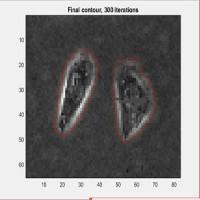 شبیه سازی مقاله تشخیص تومور ،اشیا،تصاویر و.. با استفاده از روش levelset و توزیع انرژی گاوسین